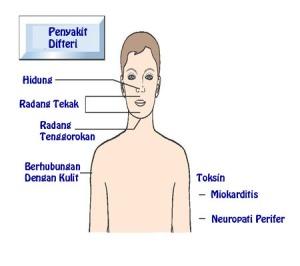 GEJALA-GEJALA-DAN-TANDA-TANDA-DIFTERI-2-3